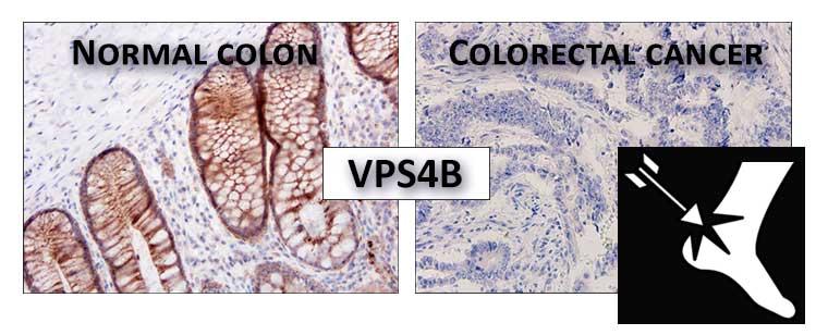 """Naukowcy z MIBMiK zidentyfikowali """"piętę achillesową"""" komórek nowotworu jelita grubego"""